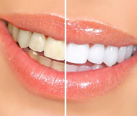 CTN Pro White teeth whitening system